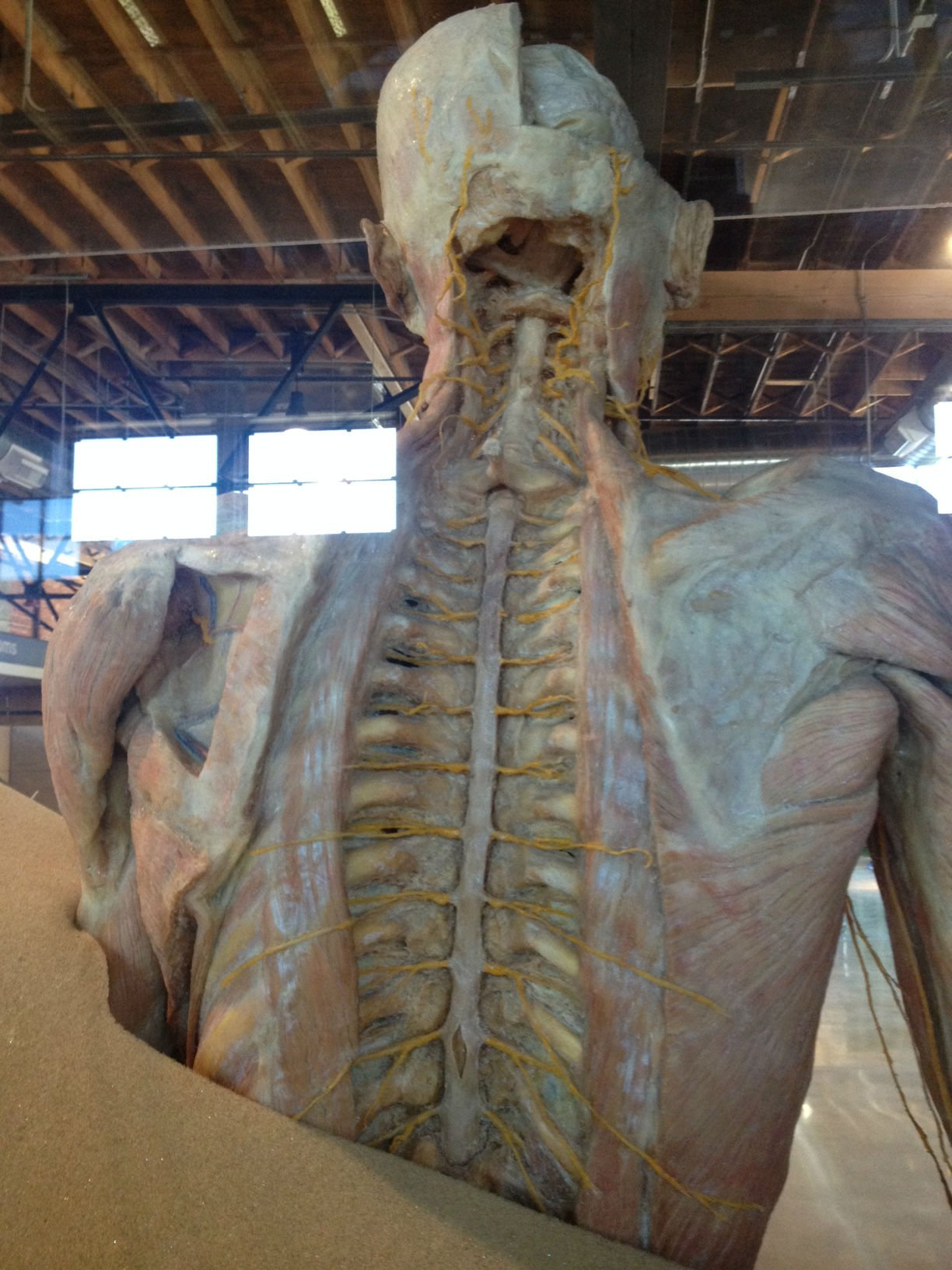 Human anatomy cadaver pictures