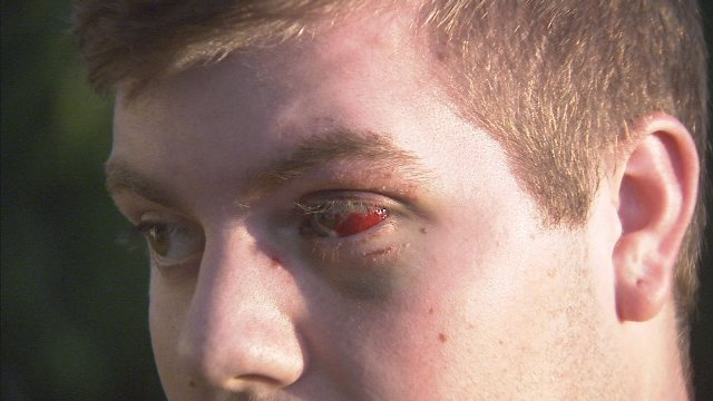 17-year-old Keelan Babinski says he was attacked by a man wielding a