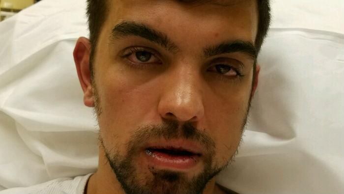 Alex Rodriguez's jaw was broken in a fight.