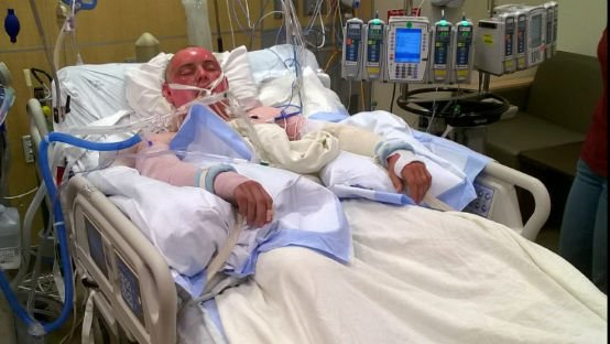 Courtesy: gofundme.com/matt-henderson-burn-recovery-fund