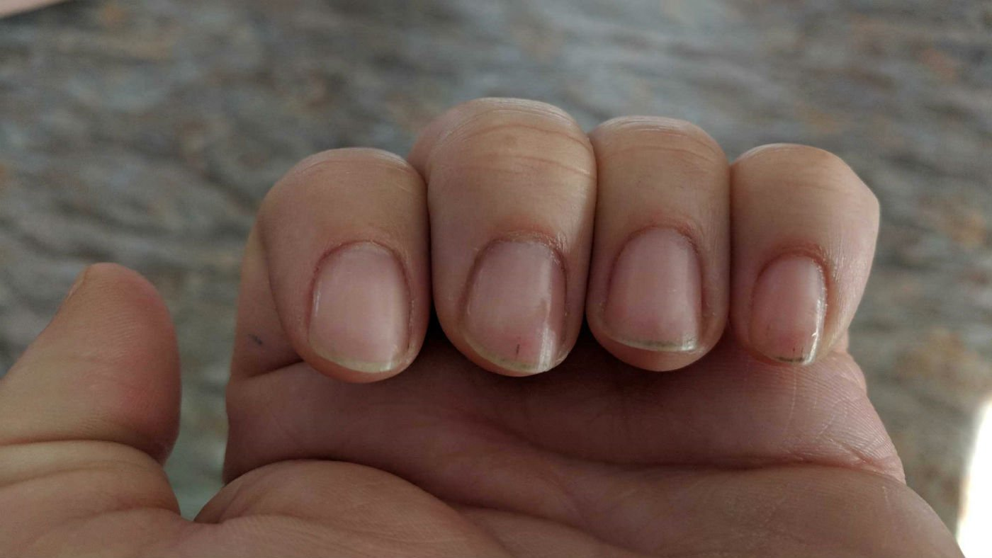 Ferry County man says wife\'s trip to nail salon ended with infec ...