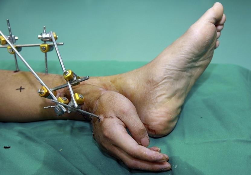 Xiao Wei's severed right hand is seen attached to his ankle before the reattachment surgery at Xiangya Hospital in Changsha, Hunan province, on Dec. 4, 2013.