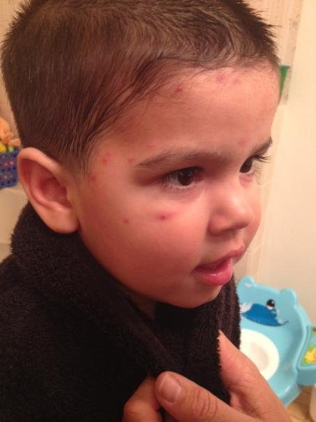 This is a photo of a boy from Omak, WA whose parents say was attacked by mosquitoes. Apparently, the bites were much worse when they first happened but this photo was taken several days later.