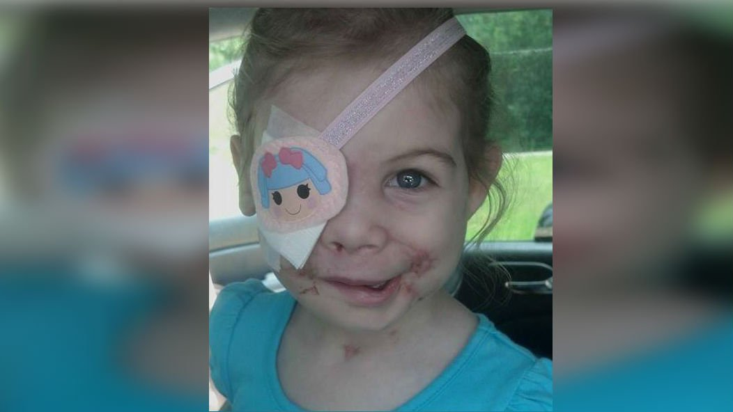 KFC Corp. says it's investigating allegations that an employee in Jackson, Mississippi, asked a 3-year-old to leave a restaurant because her facial injuries frightened other patrons.