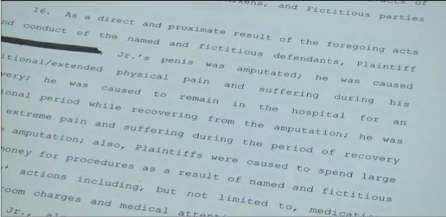 Man sues over involuntary penis amputation
