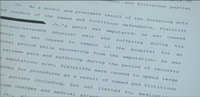 Man sues over involuntary penis amputation