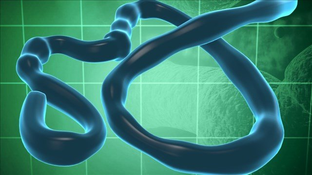 An American freelance cameraman working for NBC News in Liberia has tested positive for Ebola and will be flown back to the United States for treatment.