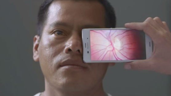 This smartphone adapter allows for portable eye exams.