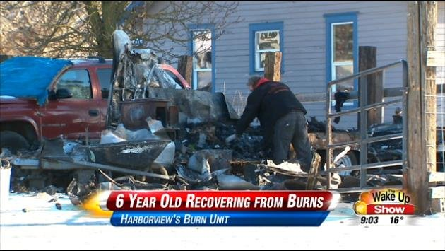 A family of five is still recovering from a trailer fire that destroyed their home.
