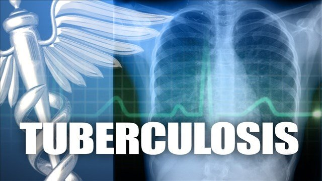 One person was found with infectious TB in January and another tested positive in late March. Both are being treated.