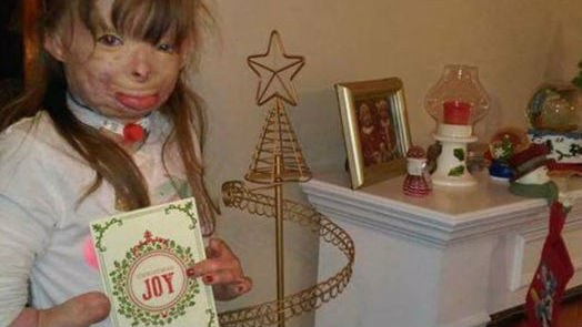 A little girl whose father and three siblings died in an arson fire has a simple holiday wish: She wants enough holiday cards to fill up her Christmas tree. Photo: Facebook