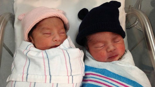 These twin babies have different birth years. Photo: NBC News